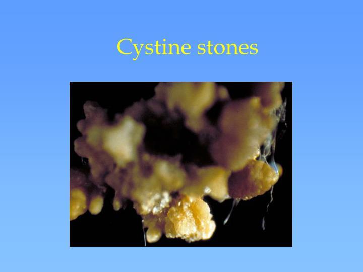 Cystine stones
