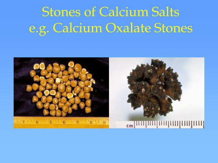 Stones of Calcium Salts