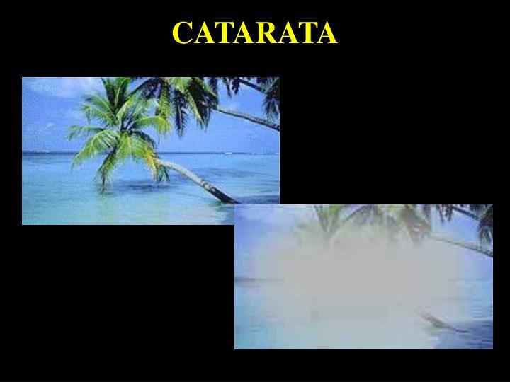 CATARATA