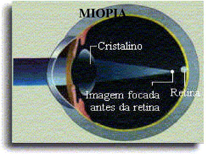 MIOPIA