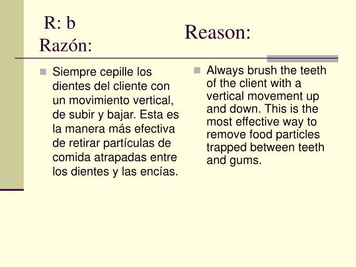 Siempre cepille los dientes del cliente con un movimiento vertical, de subir y bajar. Esta es la manera más efectiva de retirar partículas de comida atrapadas entre los dientes y las encías.