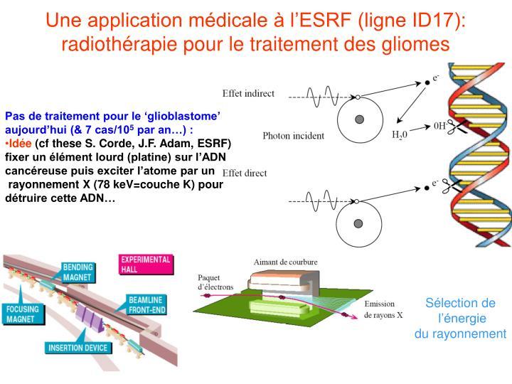 Une application médicale à l'ESRF (ligne ID17): radiothérapie pour le traitement des gliomes