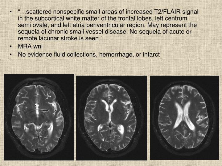 """…scattered nonspecific small areas of increased T2/FLAIR signal in the subcortical white matter of the frontal lobes, left centrum semi ovale, and left atria periventricular region. May represent the sequela of chronic small vessel disease. No sequela of acute or remote lacunar stroke is seen."""