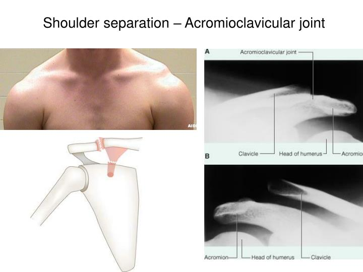 Shoulder separation – Acromioclavicular joint