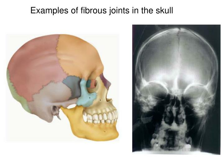 Examples of fibrous joints in the skull