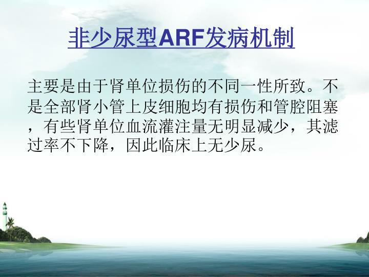 非少尿型ARF