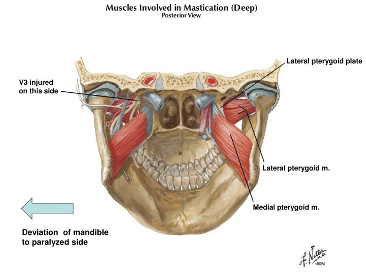 Lateral pterygoid plate
