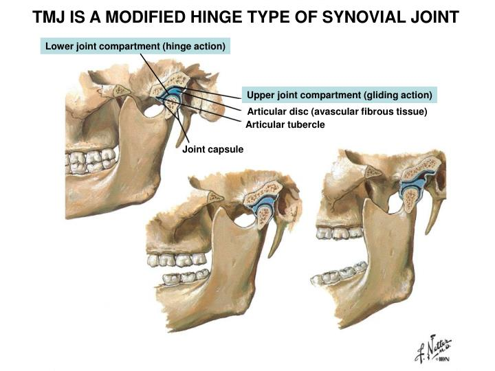 TMJ IS A MODIFIED HINGE TYPE OF SYNOVIAL JOINT