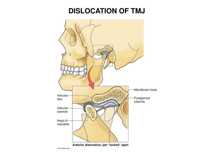 DISLOCATION OF TMJ
