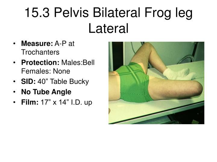 15.3 Pelvis Bilateral Frog leg Lateral