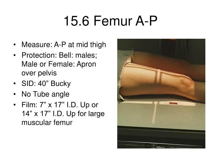 15.6 Femur A-P