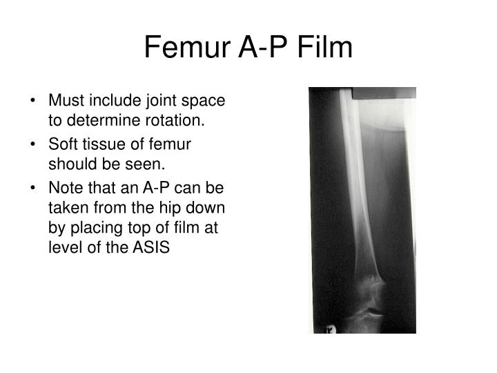 Femur A-P Film
