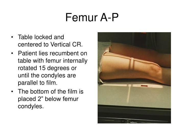 Femur A-P