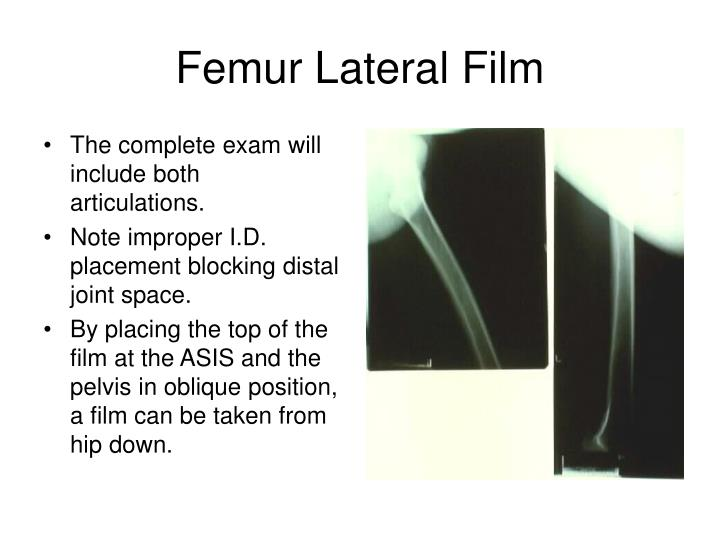 Femur Lateral Film
