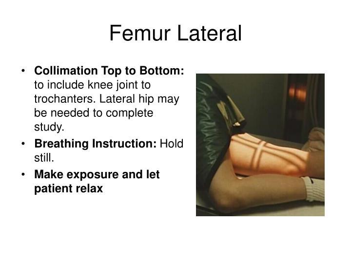 Femur Lateral