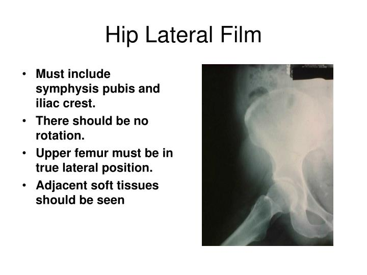 Hip Lateral Film
