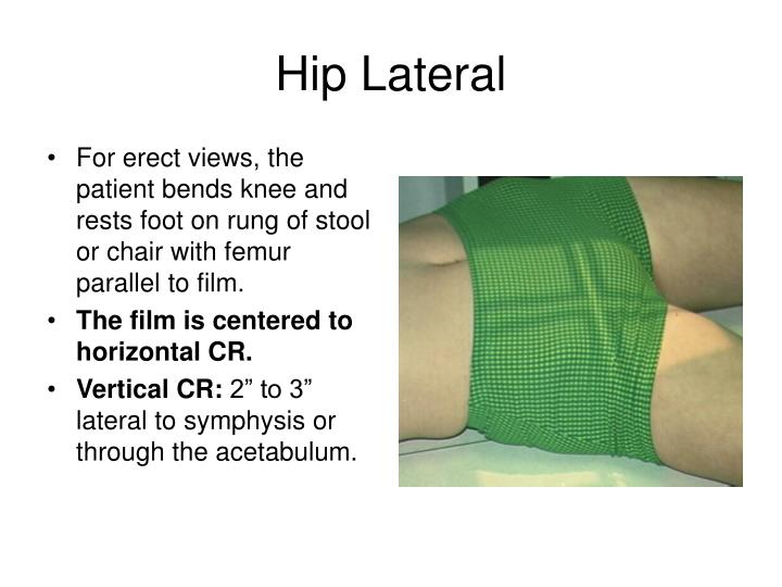 Hip Lateral
