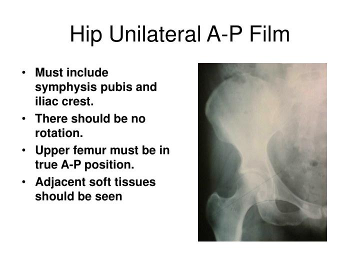 Hip Unilateral A-P Film