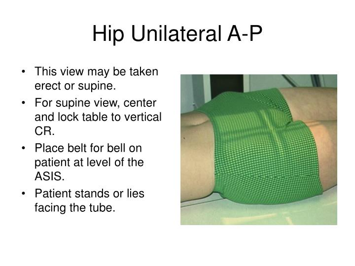 Hip Unilateral A-P