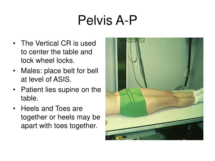 Pelvis A-P