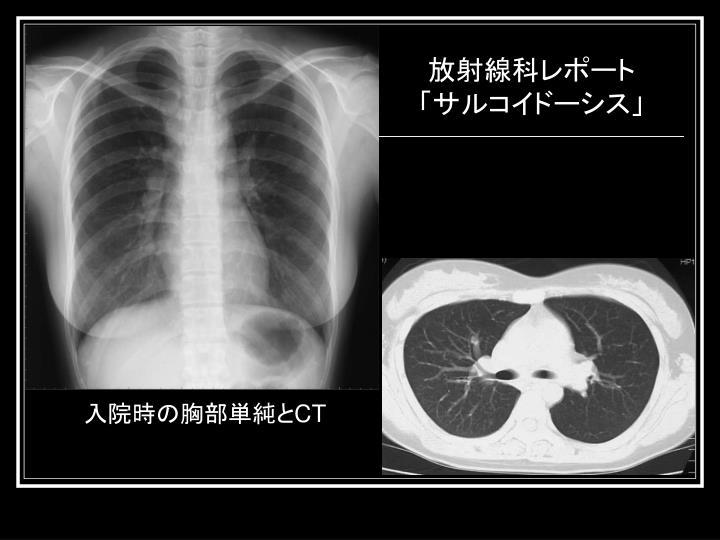 放射線科レポート