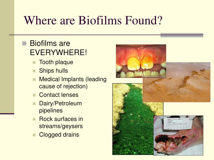 Where are Biofilms Found?