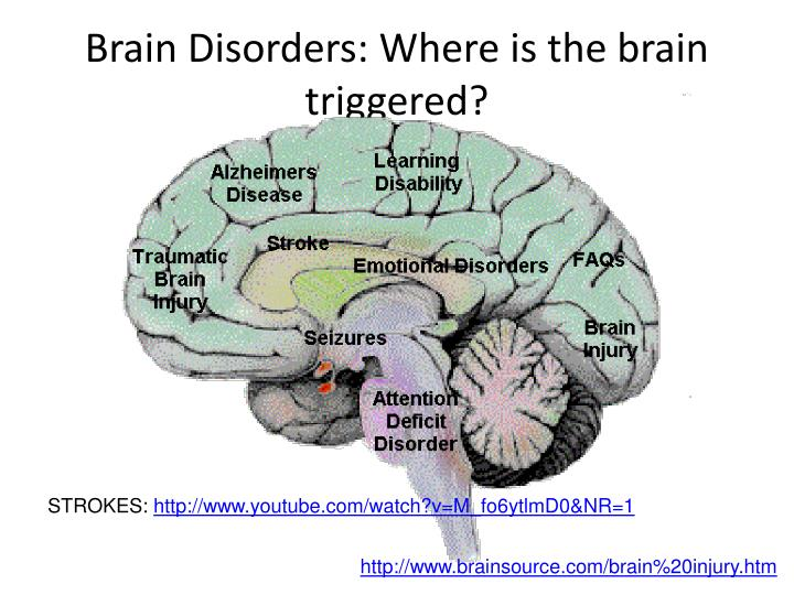 Brain Disorders: Where is the brain triggered?