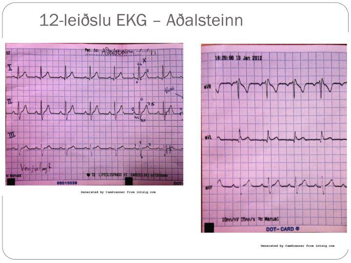 12-leiðslu EKG –