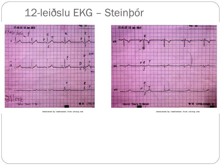 12-leiðslu EKG – Steinþór