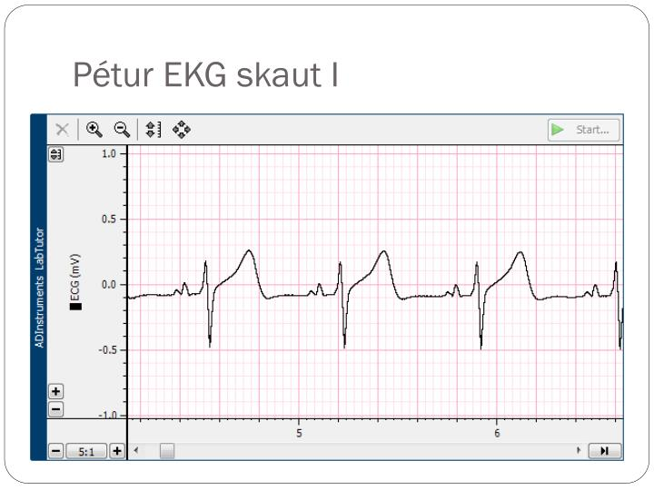 Pétur EKG skaut I