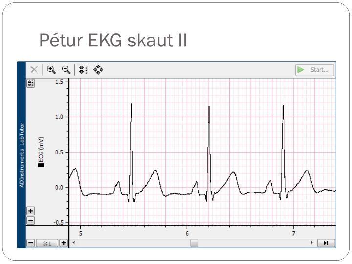 Pétur EKG skaut II
