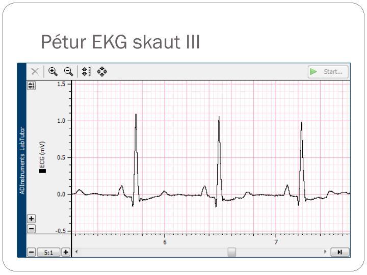 Pétur EKG skaut III