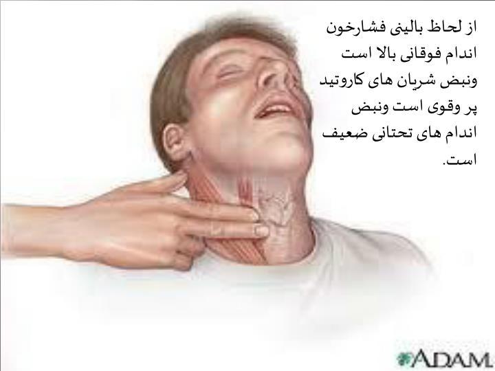 از لحاظ بالینی فشارخون اندام فوقانی بالا است