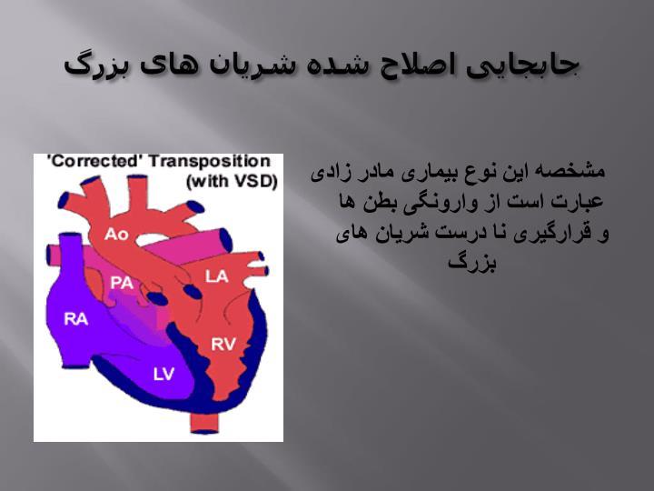 جابجایی اصلاح شده شریان های بزرگ