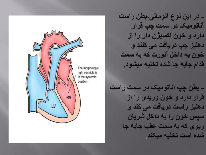 - در این نوع آنومالی،بطن راست آناتومیک در سمت چپ قرار دارد و خون اکسیژن دار را از دهلیز چپ دریافت می کنند و خون به داخل آئورت که به سمت قدام جابه جا شده تخلیه میشود.