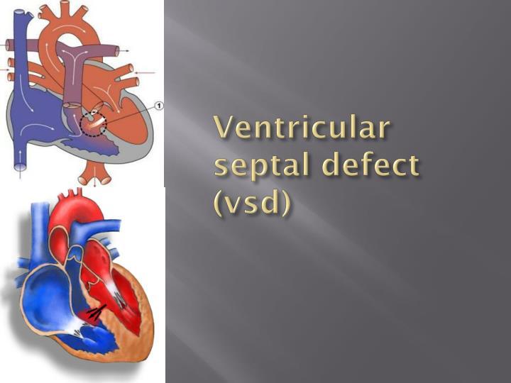 Ventricular