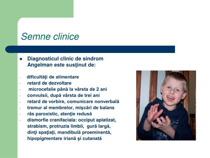 Diagnosticul clinic de sindrom Angelman