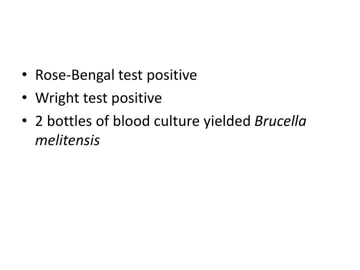Rose-Bengal test positive