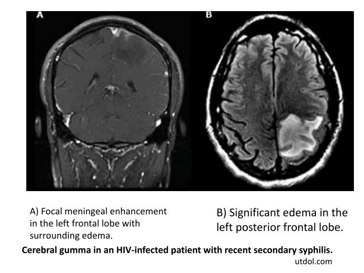 A) Focal meningeal enhancement in the left frontal lobe with surrounding edema.