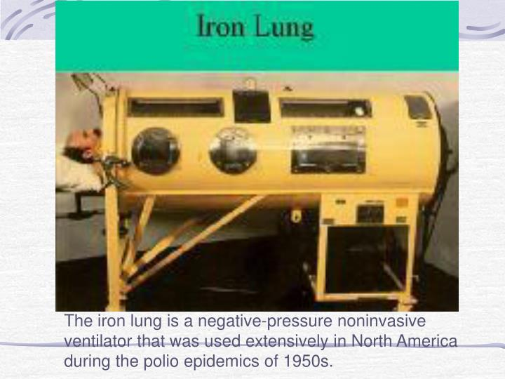 The iron lung is a negative-pressure noninvasive ventilator that was used extensively in North America during the polio epidemics of 1950s.