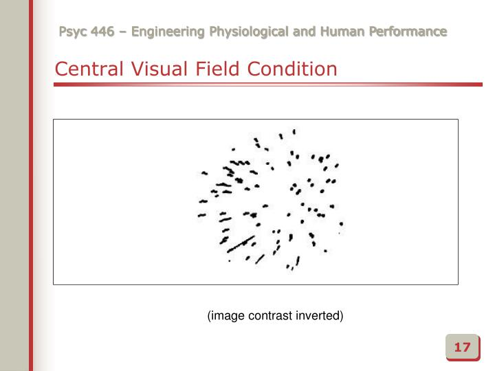 Central Visual Field Condition