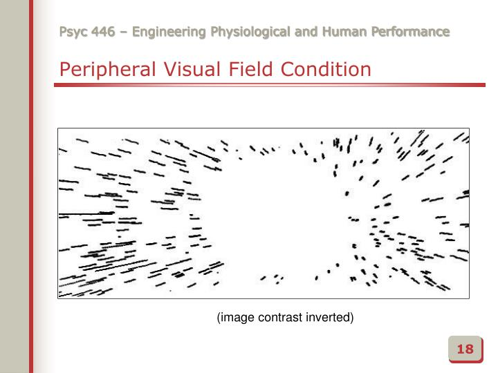 Peripheral Visual Field Condition