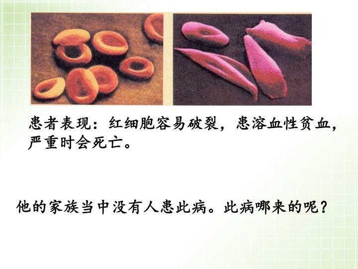 患者表现:红细胞容易破裂,患溶血性贫血,严重时会死亡。