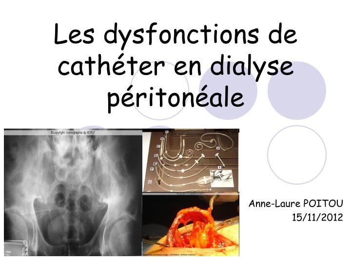 Les dysfonctions de cathéter en dialyse péritonéale