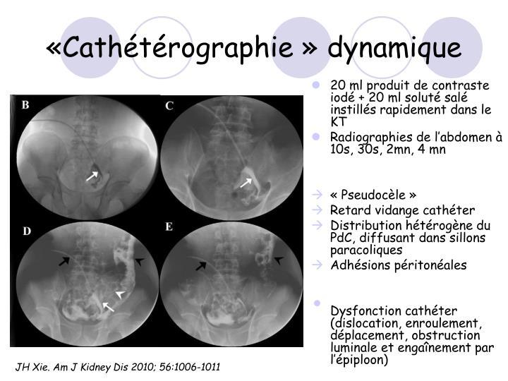 «Cathétérographie» dynamique