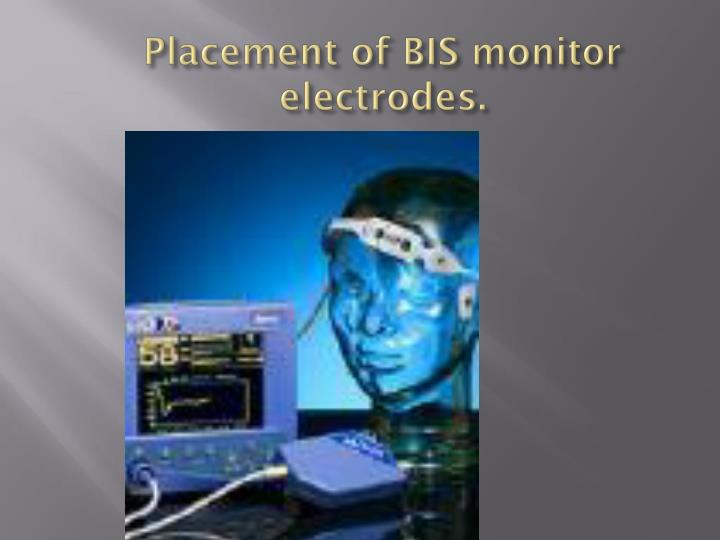 Placement of BIS monitor electrodes.