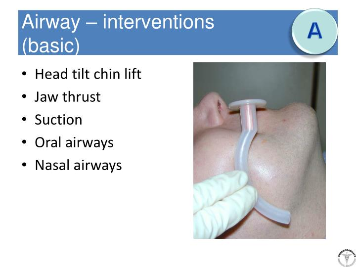 Airway – interventions
