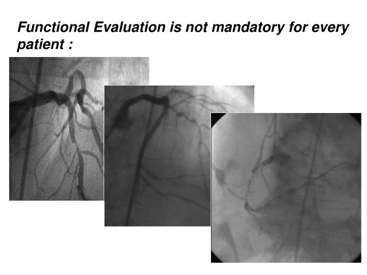 Functional Evaluation is not mandatory for every patient :