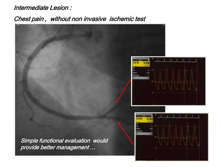 Intermediate Lesion :