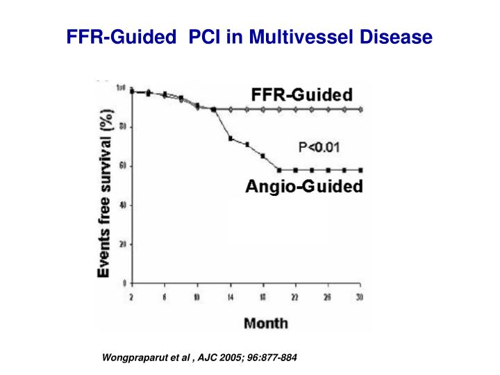 FFR-Guided  PCI in Multivessel Disease
